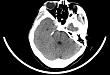 应用七叶皂苷钠治疗外伤性脑梗死 2 例