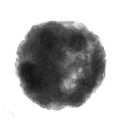 人源性心肌球