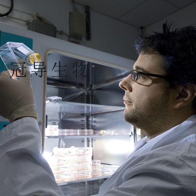 H-1522传代好:人肺癌细胞 完全培养基