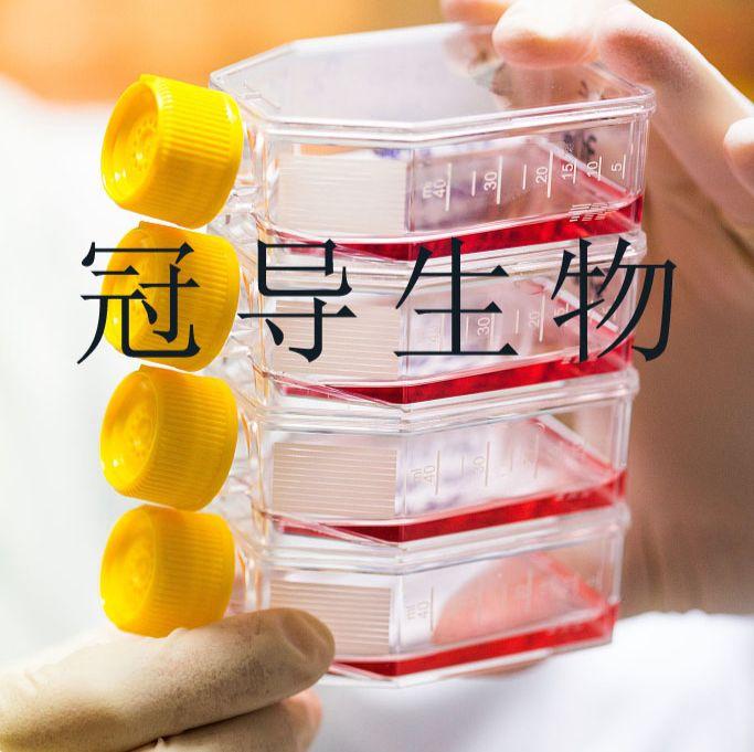 LU-65M:人大细胞肺癌复苏细胞|完全培养基