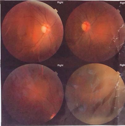 艾格眼科医院段淯平主任:为救治患者将个人安危置之度外