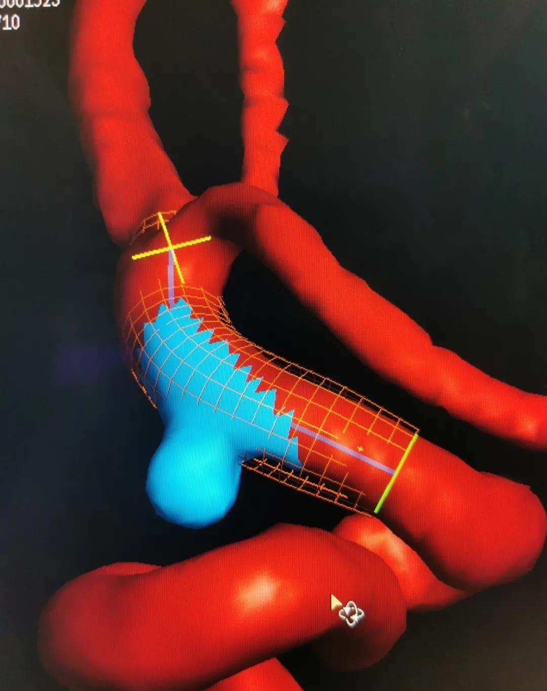 3 D 血管成像科学导航大脑「排雷」快准稳