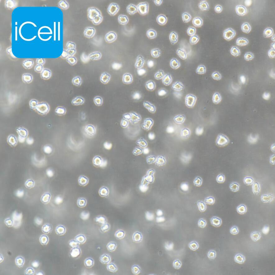 NALM-6 人B淋巴白血病细胞/STR鉴定/赛百慷(iCell)