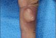 今日病例:手指低级别纤维黏液样肉瘤 1 例