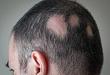 钙泊三醇与氯倍他索治疗斑秃,孰优孰劣?