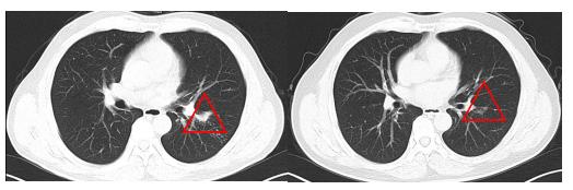 肺结节是「肺癌」?影像科专家:该病良恶难辨,别白挨一刀!