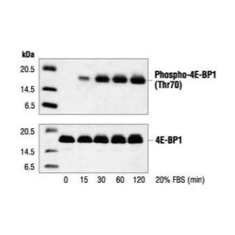 蛋白质免疫印迹法 (Western Blot ) 实验服务