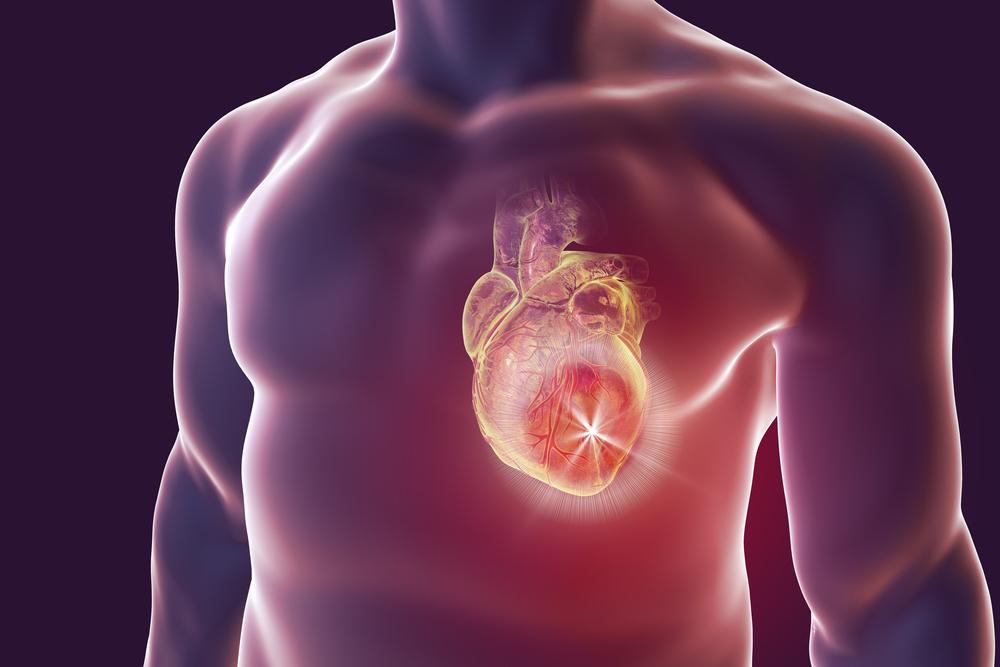 猝死也能预防?为心脏植入一个专属除颤仪!