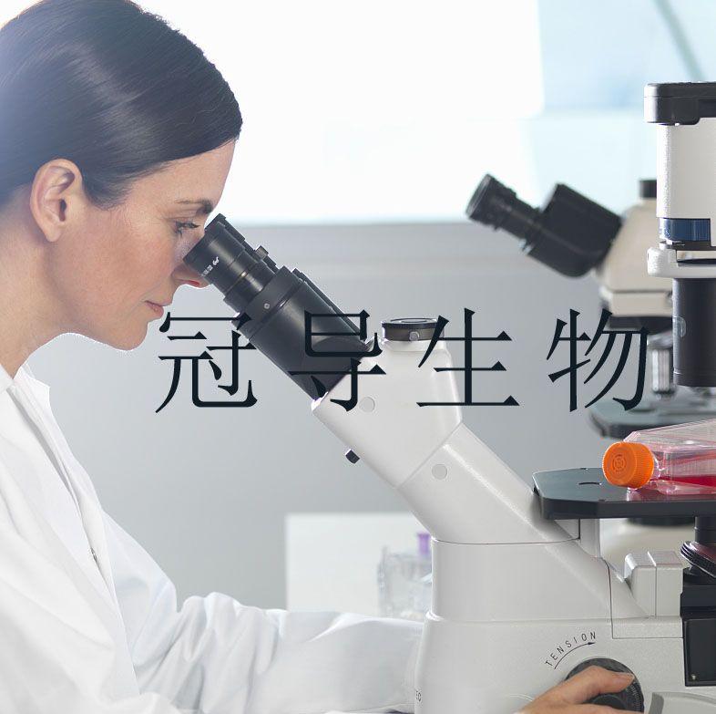 EJ:人膀胱癌低代次细胞|完全培养基