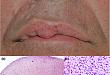 今日病例:误诊了 30 年的面部结节