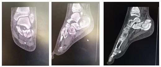 男孩 6 米高摔下跟骨骨折 足踝科医生关节镜下微创撬拨复位