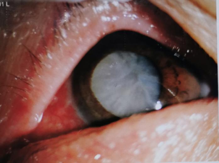 武汉艾格眼科医院专家提醒:老年性白内障,应及早做手术