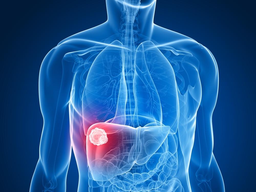 体检发现肝血管瘤该怎么办,会癌变吗?为你揭开肝血管瘤神秘面纱