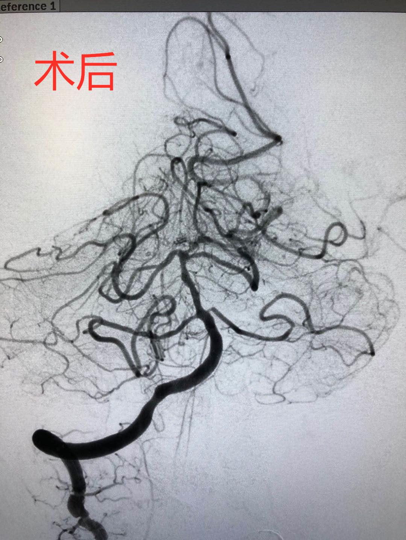 河南信合医院卒中中心成功开展固始县首例基底动脉闭塞开通术