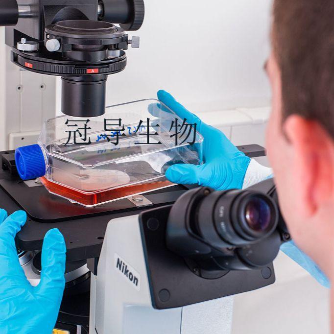 U-138MG:人脑神经胶质瘤反复传代细胞|完全培养基