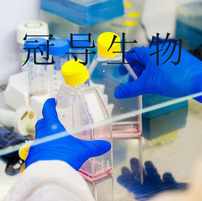 NCI-H295R:人肾上腺皮质腺癌反复传代细胞|完全培养基