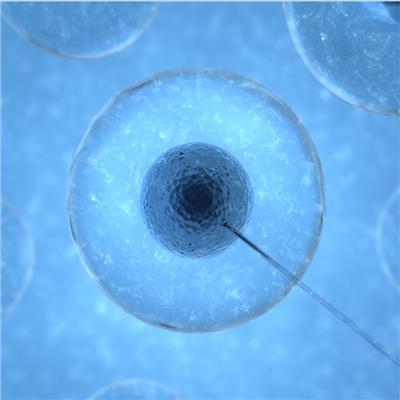 小鼠网织细胞肉瘤;M5076