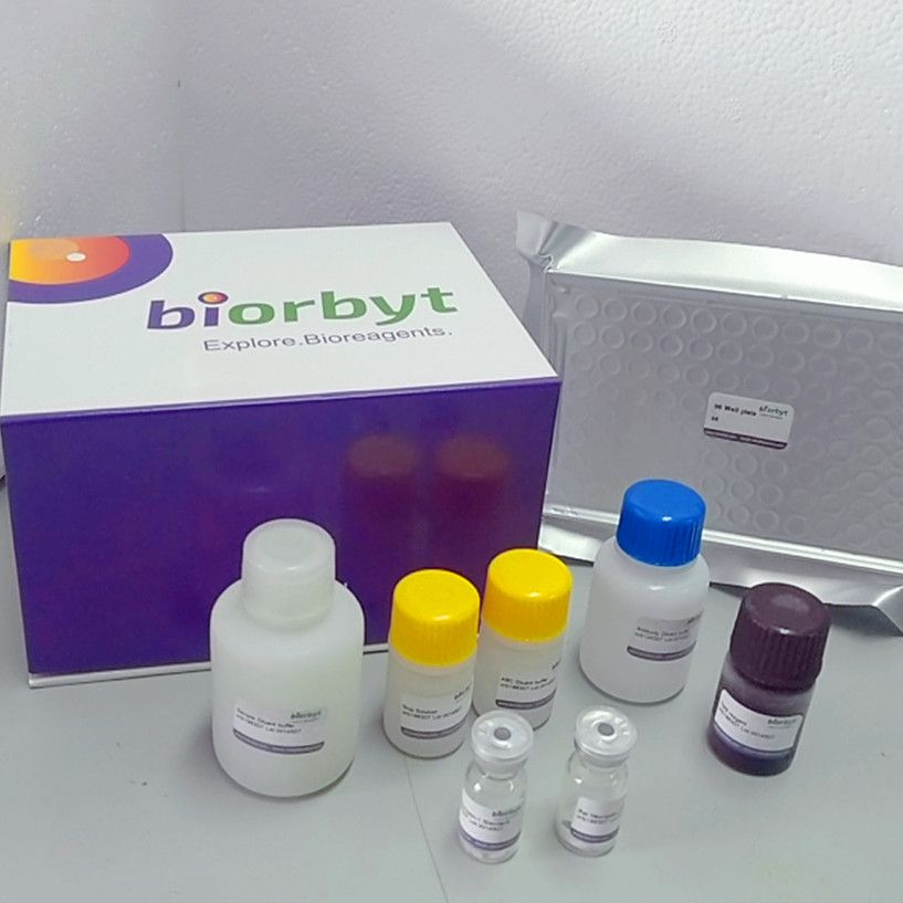 Human RNASE6 ELISA Kit,orb441974,Biorbyt