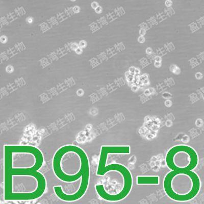 B95-8绒猴EBV转化的白细胞