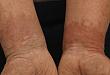 日本首例:中年男子肢端蜡样斑块