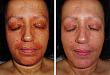 窄谱 UVB 新应用:治疗播散性黄瘤