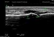 新郑市人民医院肌骨超声——痛风诊断与治疗的听诊器