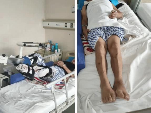西安交通大学第二附属医院骨三科成功救治多名严重脊髓损伤患者