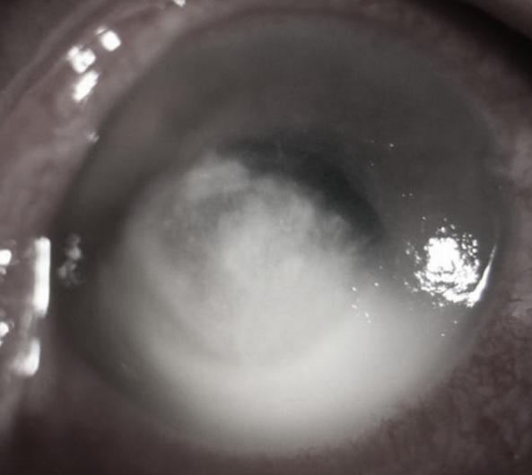 西安交通大学第二附属医院眼科完成一例穿透性角膜移植术治疗严重真菌性角膜溃疡