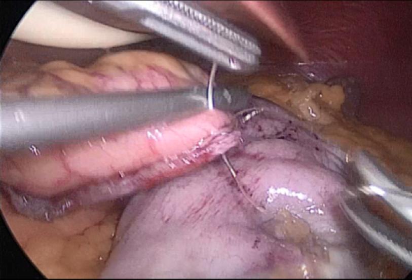 泰州市人民医院腹腔镜下袖状胃切除术病例分享(含完整手术视频)