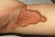 这样的红棕色斑块,容易误诊