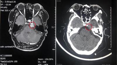 当熊猫血遇上脑膜瘤,西安高新医院神经外科团队以过硬技术攻克难点