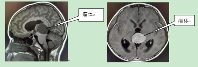 9 岁男孩松果体长肿瘤,江西省儿童医院为其进行微创手术