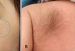今日病例:多发性痣样多毛症
