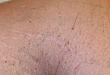 今日病例:前胸及腋窝角化性绒毛状丘疹