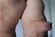 类风湿结节只见于皮肤?有何临床意义?