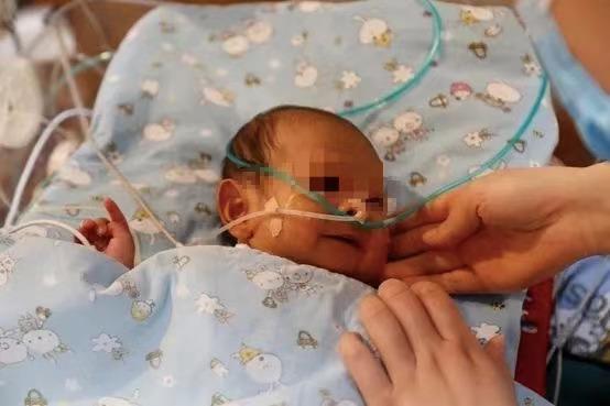 合肥京东方医院成功为出生 45 天的先心病患儿手术「补心」