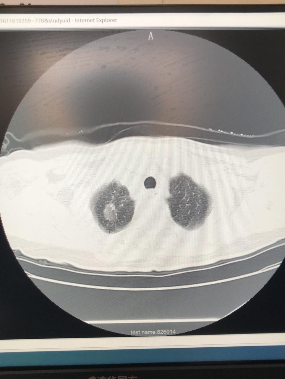 成都市新津区人民医院心胸外科团队率先开展全区首例胸腔镜下肺结节手术