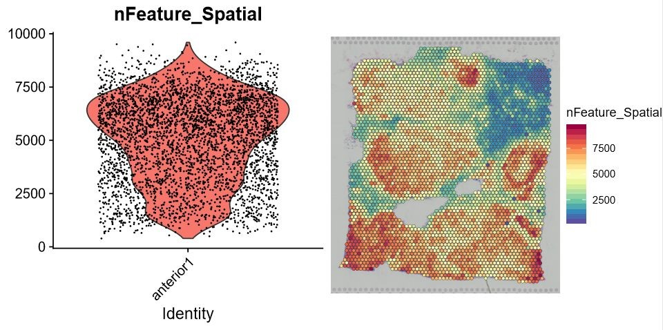 空间转录组数据分析