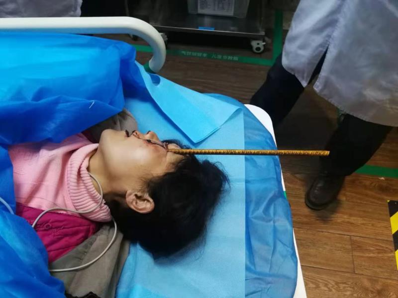 半米长钢筋贯通左眼插入口腔!多学科专家会诊抢救重伤女患者
