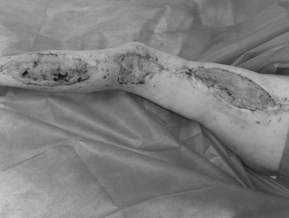 多学科联合救治大面积皮肤坏死高龄老人
