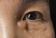 眼周长了个「杏仁」,医生用「拔萝卜」法消灭 TA
