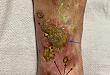 临床释疑:这样的皮肤溃疡不单纯