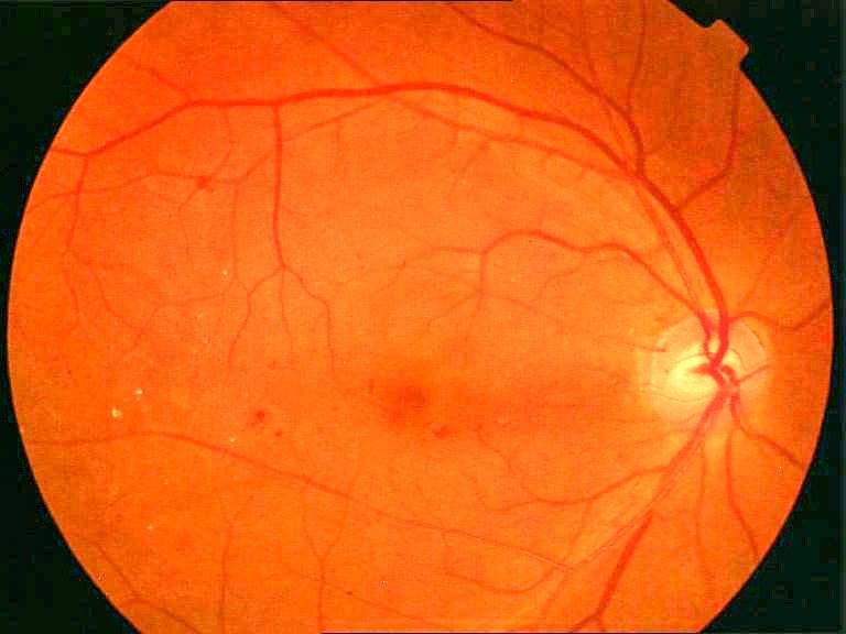 糖网(糖尿病性视网膜病变)是什么?可以及时预防治疗吗?