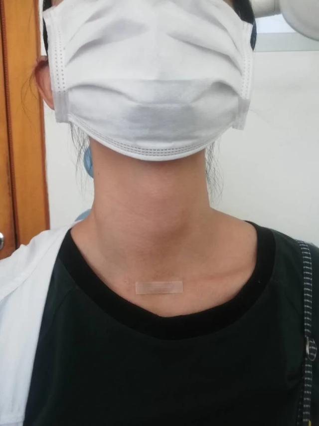 喉上神经麻痹患者一例.png