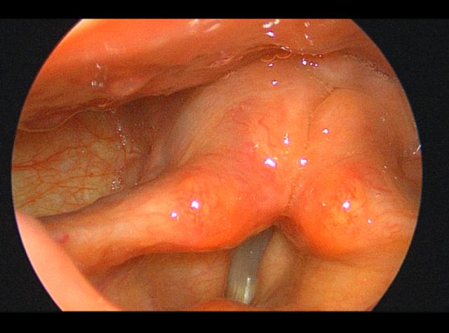 喉上神经麻痹患者一例3.png