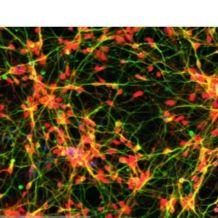 iPSC分化的皮质胆碱能神经元 (正常人)