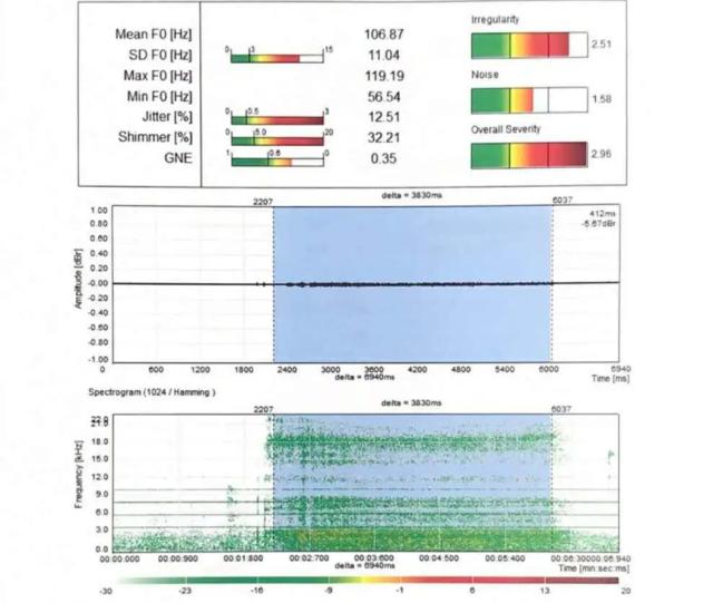 MSD-第二次声学评估1.png