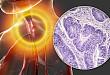 食管癌患者根治性放化疗后完全缓解患者的生存率:一项回顾性分析