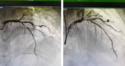 河南信合医院胸痛中心团队一日内成功救治三例心梗患者