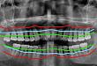 牙周病不早治,小心「老掉牙」